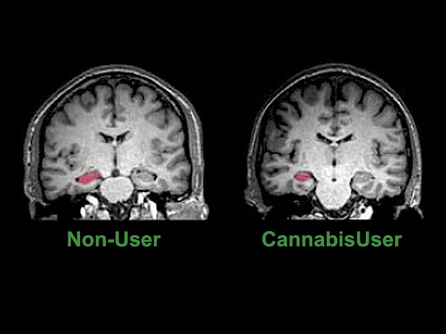Neuropsychiatry, PHYSIOLOGICAL,BEHAVIORAL and SOCIAL EFFECTS OF MARIJUANA